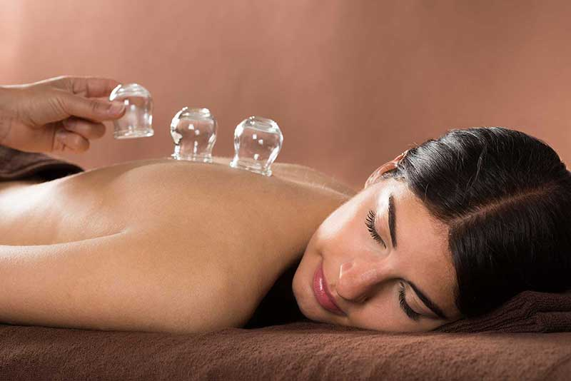 cupping massage - Bellagena - Bradenton Day Spa, Massage and Skin Care
