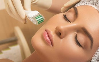 What Are The Benefits Of Microneedling?
