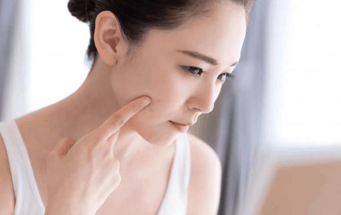 What is Hyperpigmentation?-Bradenton day spa