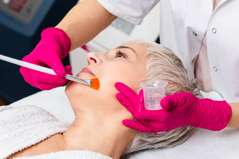 Glowing Results with a Chemical Peel